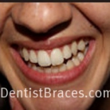 DentistBraces.com%2C+Virginia+Beach%2C+Virginia image