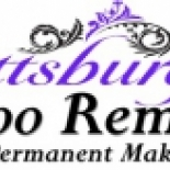 Pittsburgh+Tattoo+Removal%2C+Bridgeville%2C+Pennsylvania image