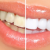 Usmile - AllSmiles | White is in | Teeth Whitening Company Icon