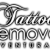 Tattoo Removal Ventura Icon